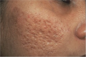 ance scarring solutions Acne Scarring: Scarred for Life No Longer
